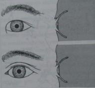Diferencias entre un ojo mongoloide y otro caucásico.